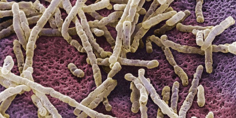 bacteria_slide-6091dcabe34ec831d6b0e62776bc6994ca0d6f47-s800-c85